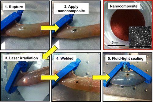 Laser Welding of Ruptured Intestinal Tissue Using Plasmonic Polypeptide Nanocomposite Solders