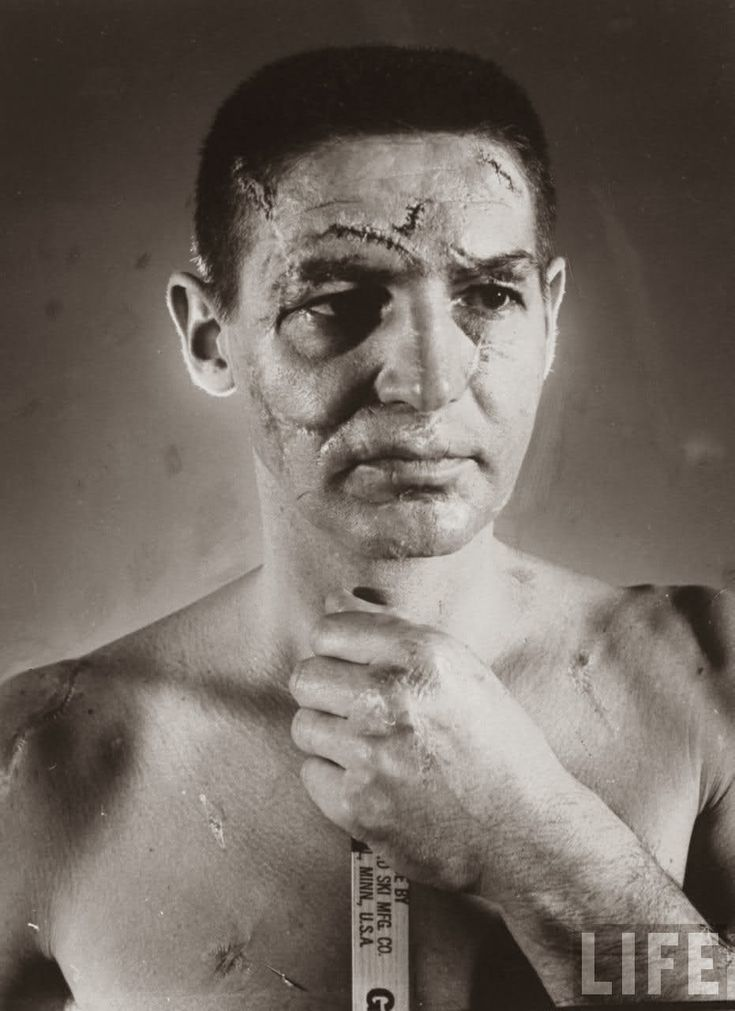 """Terry Sawchuk - The face of a hockey goalie before masks became standard game equipment, 1966  - this photo is staged actually - makeup artist """"livening"""" up old healed scars, read the story in link of this very sad athlete."""