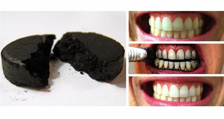 Increíble truco para BLANQUEAR tus dientes en casa. ¡Fácil y barato!