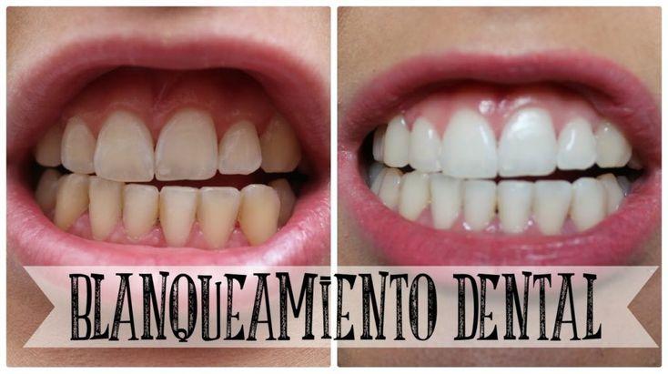 Técnica combinada: Blanqueamiento Dental en Casa y en Consultorio
