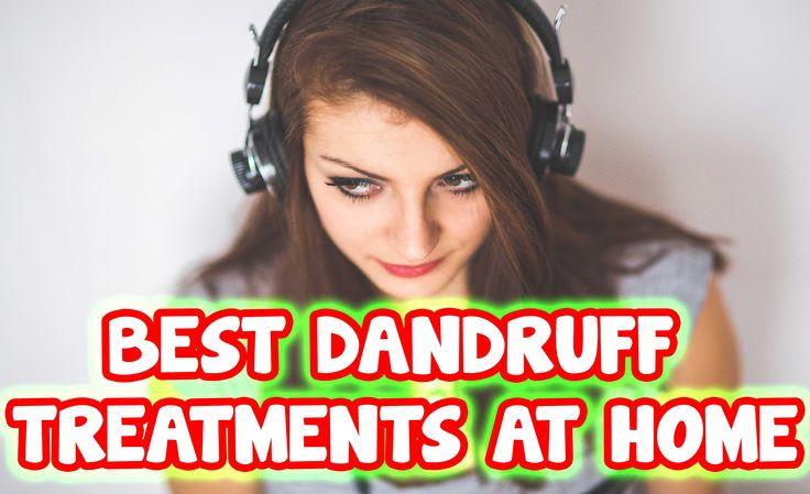 Best Dandruff Treatments at Home
