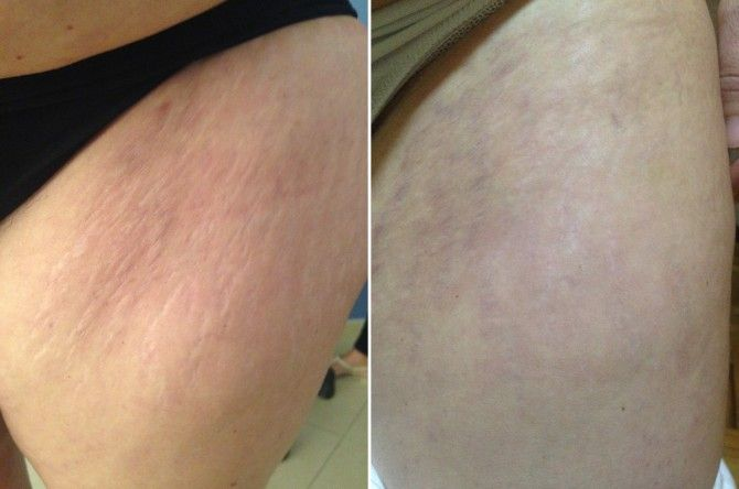 Smagliature - prima e dopo un trattamento