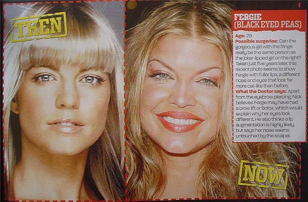 Fergie Plastic Surgery, if it makes her happy that cool. But I think she was much prettier before she changed her whole face.