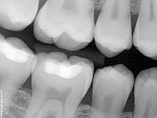 Dental X-Rays: Benefits and Safety  #Dental