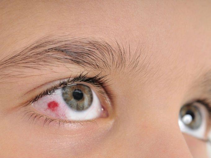 Conoce las causas del derrame ocular y sus características. Un derrame ocular o hemorragia subconjuntival sucede cuando se revienta un vaso sanguíneo en el ojo por diversas causas. Entre las causas de derrame ocular están los golpes, traumas, toser y estrés.