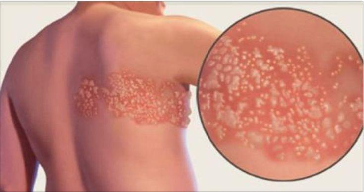 O herpes zoster é uma erupção cutânea dolorosa.Ele pode surgir na face ou em outra parte do corpo.Popularmente é conhecido com o nome de cobreiro.O vírus do herpes zoster é o mesmo que provoca a catapora (varicela).