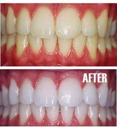 Doe een klein beetje tandpasta in een klein kopje, meng er een theelepel bakpoeder plus een theelepel waterstofperoxide, en een halve theelepel water. Meng grondig dan je tanden poetsen gedurende twee minuten. Vergeet niet om het te doen een keer per week tot je het gewenste resultaat hebt bereikt. Zodra uw tanden zijn goed en wit, je beperken tot het gebruik van de whitening behandeling een keer per maand of twee