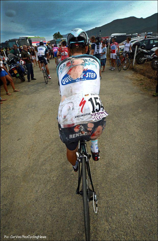 Tony Martin (Omega Pharma Quickstep) injuries at Tour 2013 Cyclists are tough. Bad crash, but didn't stop Tony Martin. RESPECT!