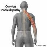 Severe neck pain that travels into your arm or hand and accompanied by numbness or tingling may mean a diagnosis of cervical radiculopathy.
