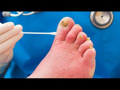 Best Fungal Nail Treatment - Powerful Toenail Fungus Cream