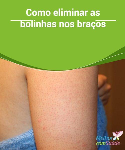 Como #eliminar as bolinhas nos braços Geralmente as #bolinhas nos #braços aparecem devido a #alterações hormonais no organismo. Saiba como eliminá-las de forma #natural.