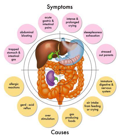 61 best acid reflux and nausea symptoms images on pinterest, Skeleton