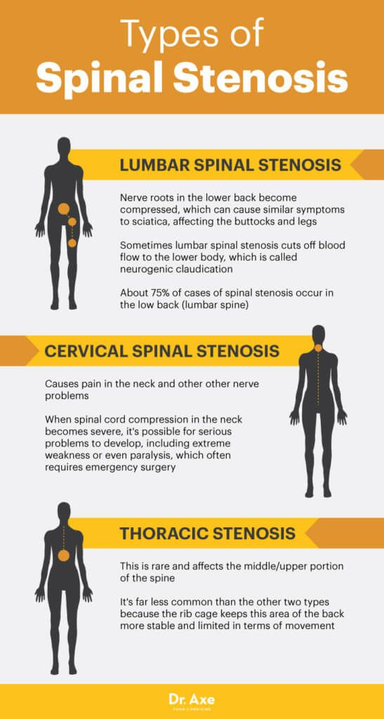 Types of spinal stenosis - Dr. Axe