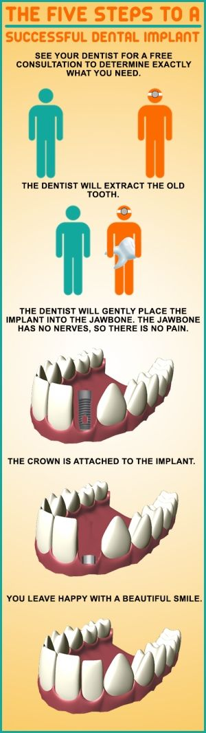 The five steps to a successful dental implant