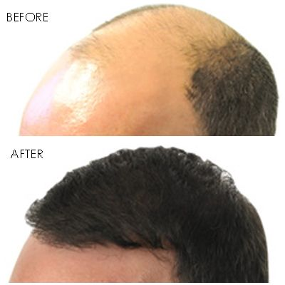 Hair transplant procedures can improve a person's overall look and boost confidence tremendously. Best Hair Transplant Los Angeles - Revive Hair Restoration provide hair transplant (FUT and FUE), medical hair loss treatments and best hair restoration in Los Angeles services. Please contact us at 213-634-1706 to book a private consultation with our medical consultant.