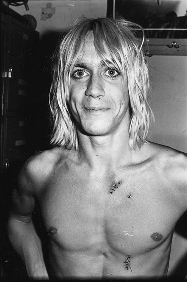 """Adorable! Iggy Pop, all stitched up after """"the glass incident"""" at Max's Kansas City July 1973"""