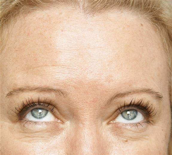 Anti Wrinkle Injection - AFTER