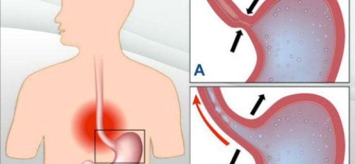 7 remèdes naturels pour soigner l'acidité et le reflux gastrique