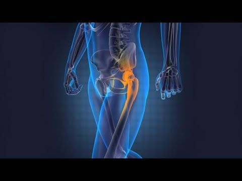 #HipReplacement Surgery in #India - PlacidWay video - YouTube
