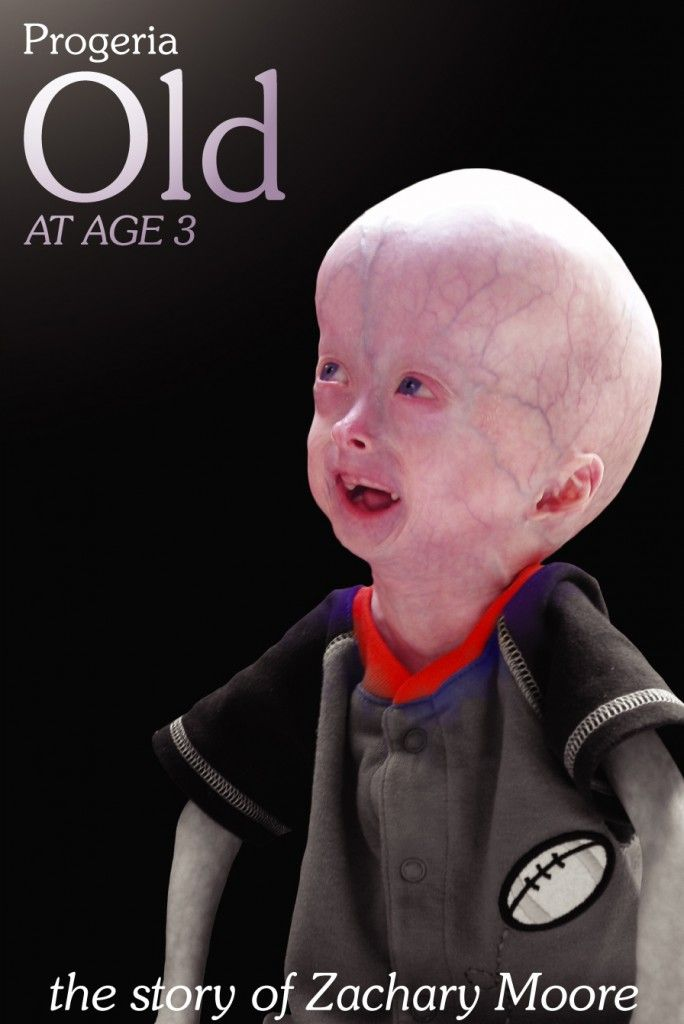 "Progeria (also known as ""Hutchinson–Gilford progeria syndrome"" and ""Hutchinson–Gilford syndrome"") is an extremely rare, severe, genetic condition wherein symptoms resembling aspects of aging are manifested at an early age."