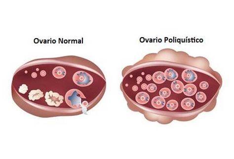 DOLOR DE OVARIOS Y DIETA RELACIONADOS El síndrome de los ovarios poliquísticos (SOP) y la dieta están relacionados. Las probabilidades de esta alteración...