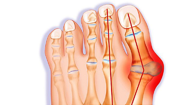 Slideshow: All About Bunions | WebMD