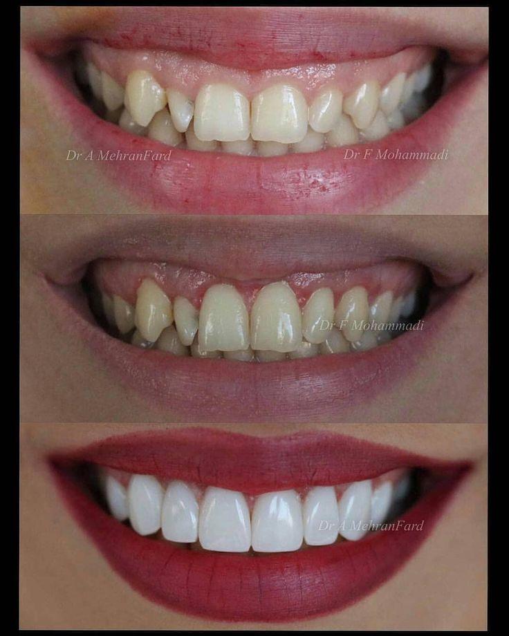 Amazing Transformation! Tag your friends  . . . _______________________________  Follow @viraldentist for more! _______________________________ #alldentfor#dentalstudent #teeth #dental #odontologia #dentistry #braces #dentalschool #dentalassistant #dentalhygienist #dentalhygieneschool #teethwhitening #cosmeticdentistry #cosmeticsurgery #toothfairy #implants #dentures #rootcanal #odonto #smile #whiteteeth #cavity #cavityfree via  @dr_amirhossein_mehranfard