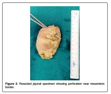 Spontaneous Small Bowel Perforation following Adjuvant Chemotherapy for Carcinoma Breast
