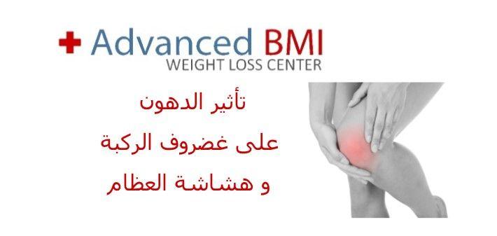 Pin On Advanced Bmi Obesity Surgery Lebanon