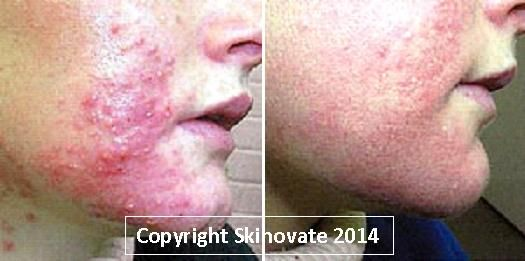 Rapid Acne Before & After Photo