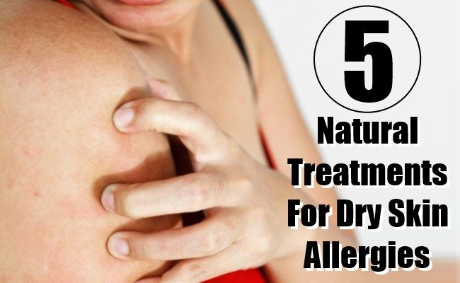 5 Most Effective Natural Treatments For Dry Skin Allergies And Their Symptoms