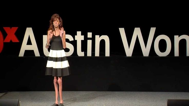 WYSK Lizzie Velasquez Asks: How Do You Define Yourself?