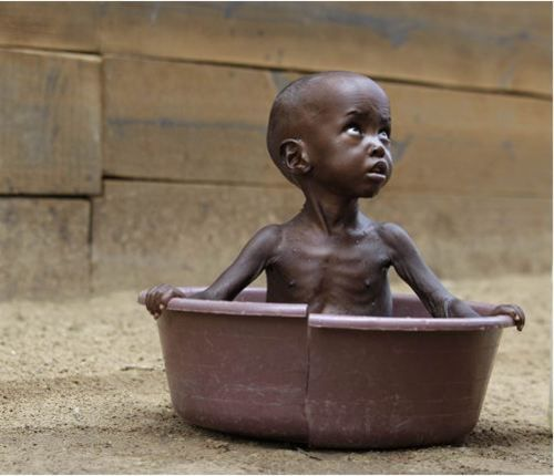 Two-year-old Aden Salaad from Kenya, bathes outside a Doctors Without Borders hospital, where he is receiving treatment for malnutrition.