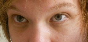 Periorbital dark circles (also known as dark circles) are dark blemishes around the eyes. There are many causes of this symptom, including h...