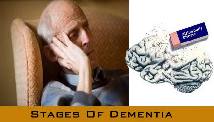 Dementia Progression, Length Dementia Stages, End-Stage Dementia, Early Stage Dementia