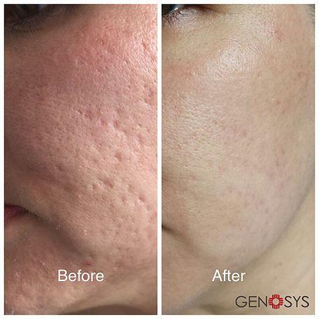 Microneedling | Microneedling, Skin resurfacing treatment ...