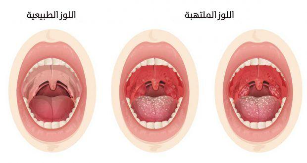 علاج التهاب الحلق واللوزتين Oumhidaya Ice Tray Novelty Silicone Molds