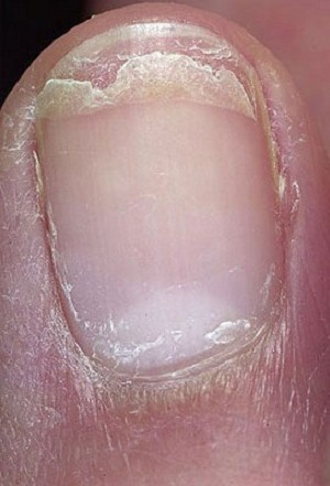 6 Types Of Toenail Problems And Their Causes: Well kept toenails look very beautiful especially in summers when you wear your sandals.  However if you don't take proper care, some toenail problems may arise. These nail problems are