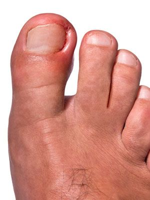 Our feet perform amazing feats, but what we do to them is criminal. Learn about foot anatomy and common foot problems from calluses to toenail fungus.