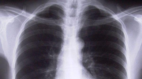 Pneumonia  – Causas, tratamento, diagnóstico