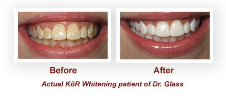 If you have severely stained teeth – for example, if you ever took the antibiotic tetracycline – you may know that not all whitening treatments will work to bring back the brilliant white you desire. We are excited to offer a new teeth-whitening procedure called KöR Whitening for extreme staining. If you've ever been disappointed in the results from other methods, you will be amazed at this technique.