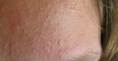 Votre peau est granuleuse, tachetée de micro-kystes que vous n'arrivez pas à éliminer? Votre visage n'est jamais lisse et votre meilleur allié reste le maquillage? Après de longues heures de recherches, grand-mère a trouvé 2 recettes naturelles pour faire la guerre aux micro-kystes. C'est parti! 1/ Dans un bol, mélangez 10ml d'huile de jojoba, 2 …