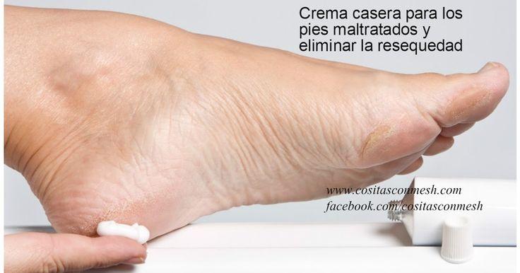 So machen Sie hausgemachte Creme für trockene oder ramponierte Füße