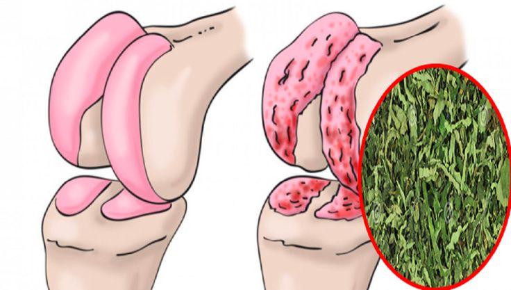 Oggi vi proponiamo un trattamento naturale, raccomandato anche dai medici, che rigenera la cartilagine di anca e ginocchia, eliminando il dolore.