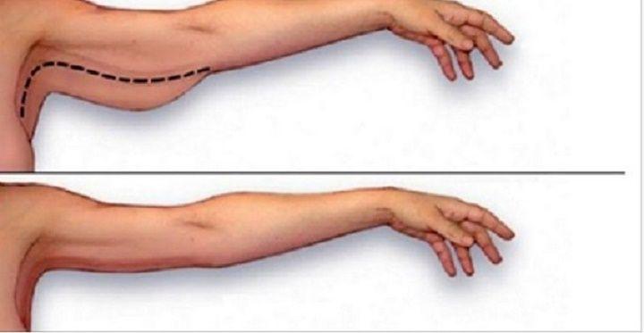 Ter excesso de gordura nos braços é um problema desagradável, especialmente para…