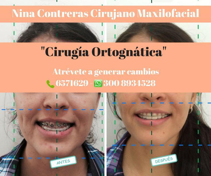 Especialistas en #cirugía #ortognática  Agenda tu cita ya:  ☎️ 6571629 📲 300 8934528 #clientefelíz #sonríe #ortodoncia #implantes #ninacontreras http://ninacontrerascmf.com/