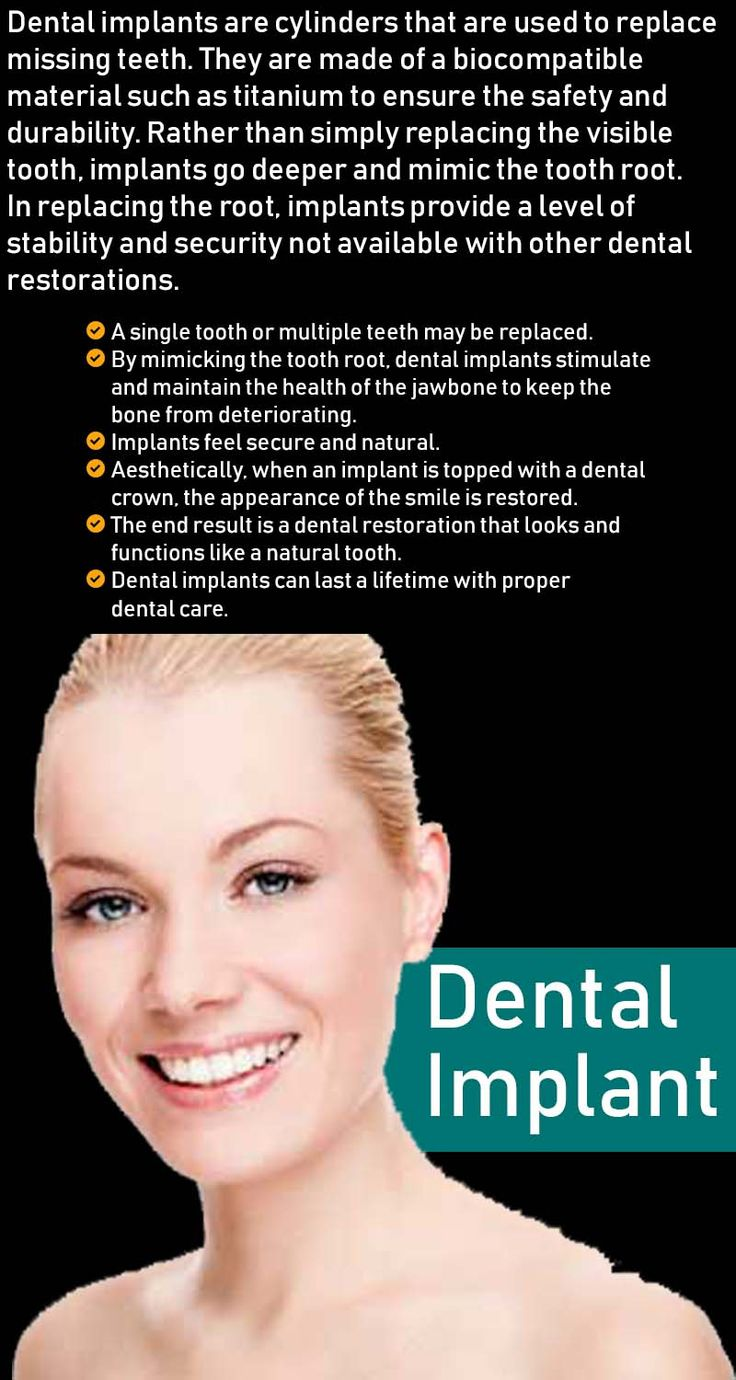 For a #dentalimplant procedure to replace a missing #tooth and restore your #smile contact local #dentist Dr. Gary Edeer in #Wayne #NJ (862) 766-6363