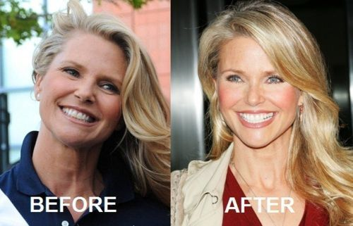 Christie Brinkley plastic surgery before and after.  Maybe an eyelift?