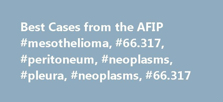 Best Cases from the AFIP #mesothelioma, #66.317, #peritoneum, #neoplasms, #pleura, #neoplasms, #66.317 http://fiji.nef2.com/best-cases-from-the-afip-mesothelioma-66-317-peritoneum-neoplasms-pleura-neoplasms-66-317/  Best Cases from the AFIP Multicystic Mesothelioma1 A 34-year-old man with no significant past medical history presented to his primary care physician with symptoms of vague abdominal pain and distension, having fallen against a concrete object several days earlier. Results of…
