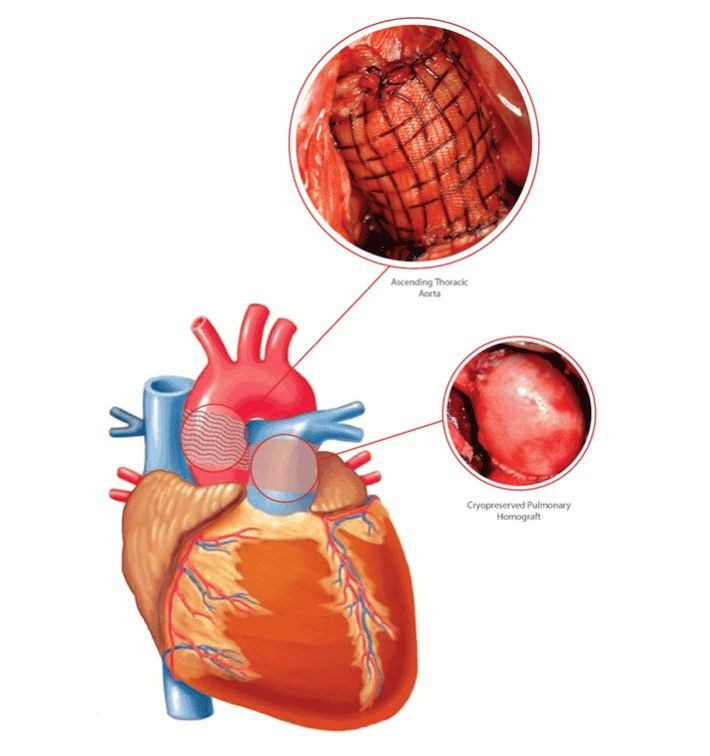 Aortic Stenosis In Children: 9 Best Aortic Stenosis Images On Pinterest